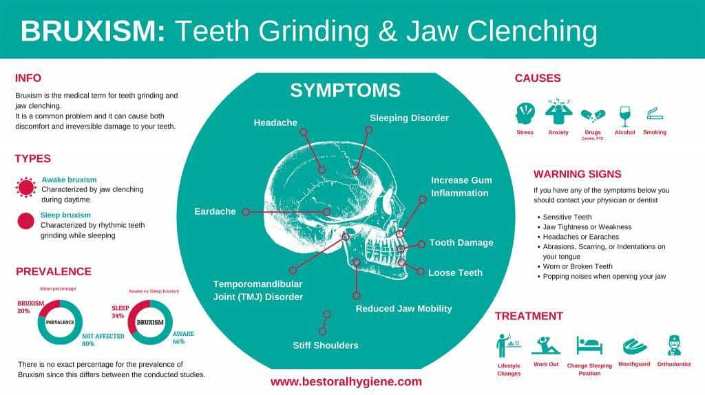 Infographic: BRUXISM Teeth Grinding & Jaw- lenching-s