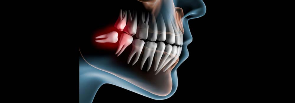 Wisdom teeth problems and solutions