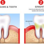 How to treat Gingivitis 2