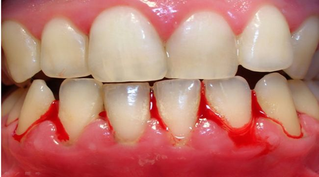 how to treat gingivitis